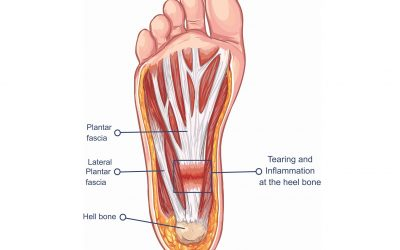 Treating Plantar Fasciitis (With a High Load Strength Training Program)